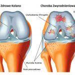 Chrząstka stawu kolanowego
